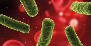 ¿Qué es la sepsis?